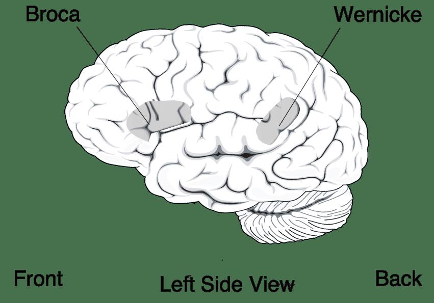 Alteración del lenguaje tras un ictus: Afasia de Wernicke