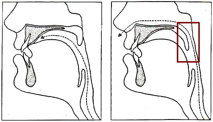 Nasalización del habla: Rinolalia